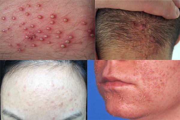 فولیکولیتیس چیست و چه علائمی دارد؟
