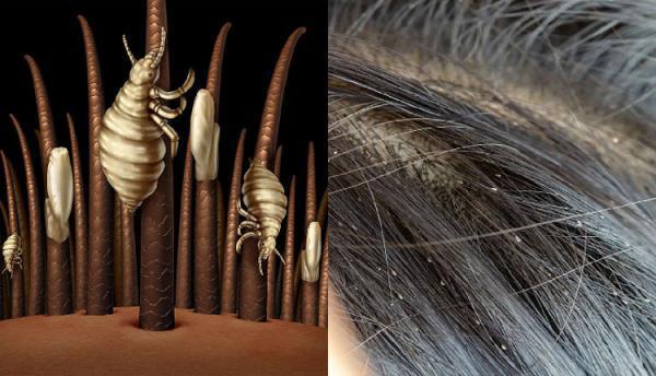 درمان قطعی شپش سر با پودر لباسشویی، فقط با این روش!